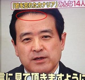 江田憲司かつら
